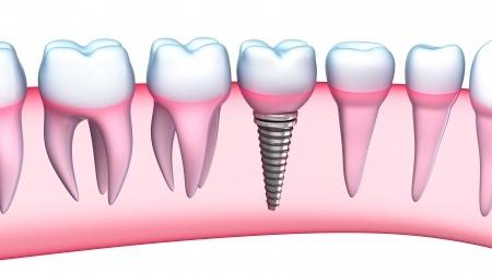 רופא שיניים במעלות לימודים