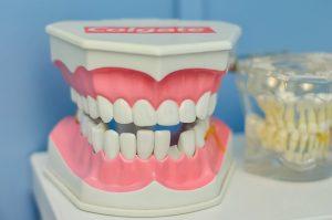 שתלים להשתלת שיניים